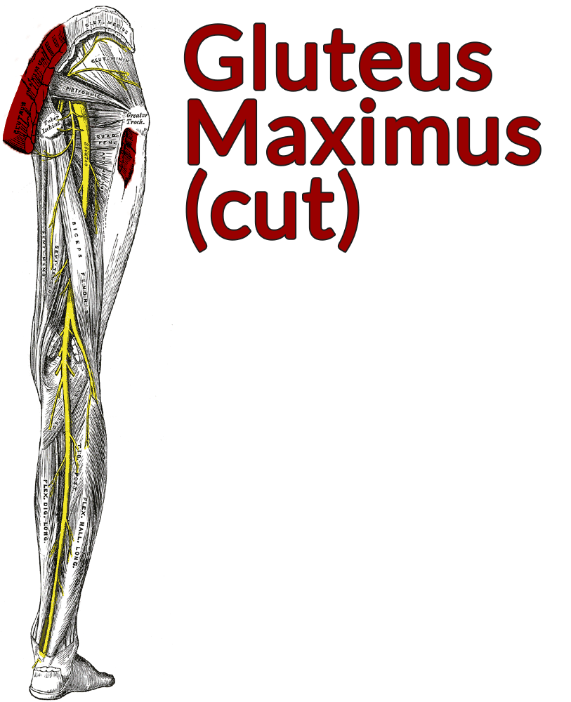 Drawing of the posterior thigh with the gluteus maximus cut and highlighted