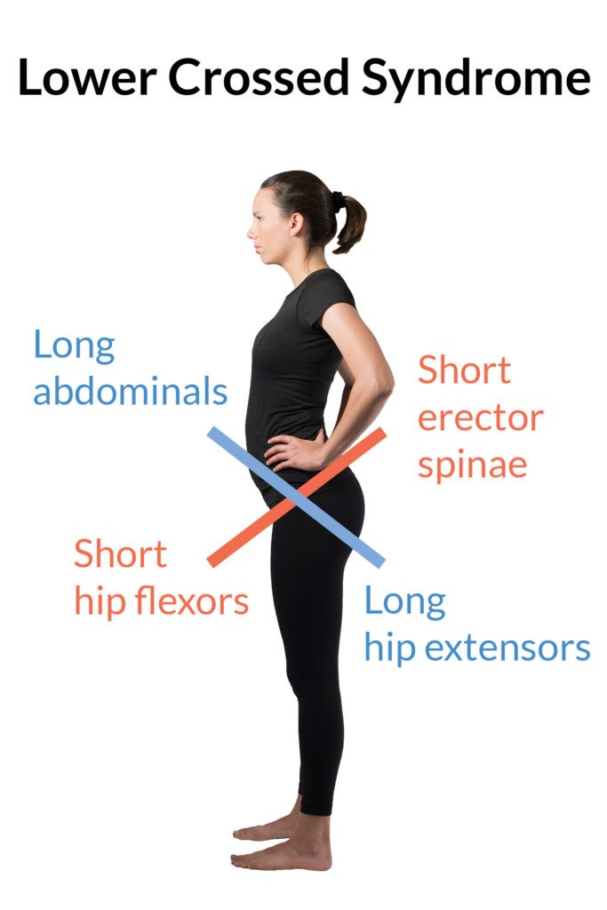 Lower crossed syndrome is characterized by a forward tilting of the pelvis, short erector spinae and hip flexor muscles, and long abdominal and hamstring muscles. This is often used as an explanation as to why people do quad stretches.