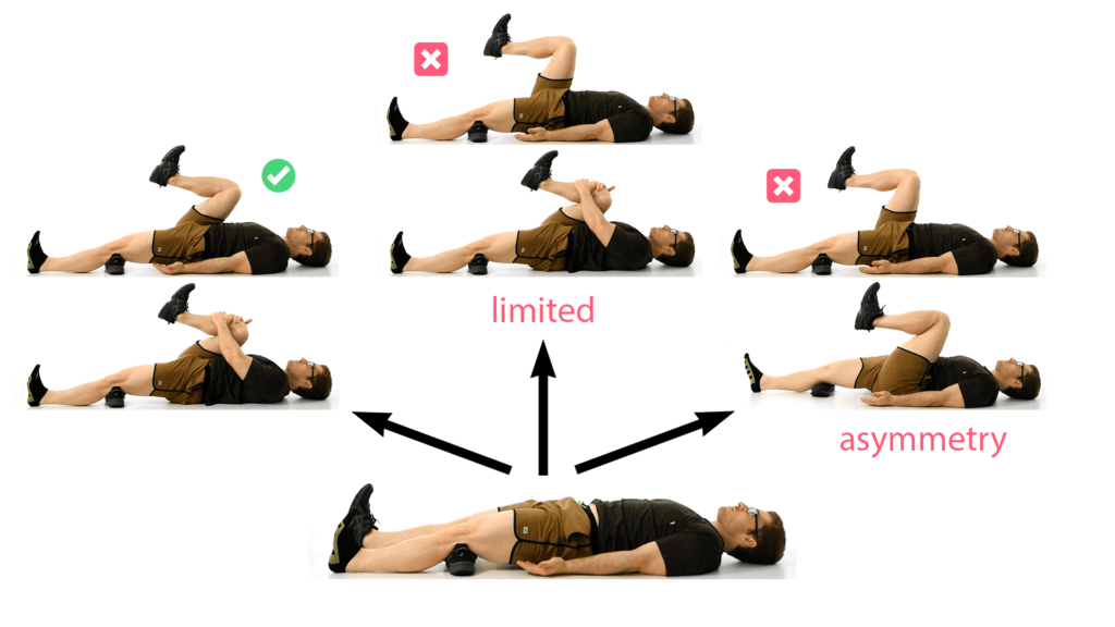 Supine march test showing a good result with full range of motion, one bad result with limited range of motion, and another bad result with asymmetry